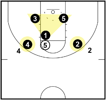 Triangle and 2 Defense - when the ball is in the high post